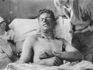 Mustard Gas Burns