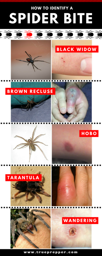 How to Identify a Spider Bite Infographic